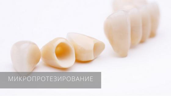 Микропротезирование зубов в стоматологической клинике «Даная»