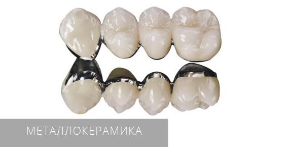 Протезирование зубов металлокерамическими коронками в стоматологической клинике «Даная»