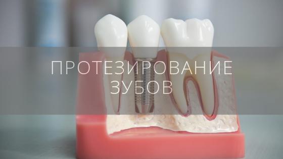 Протезирование зубов в стоматологической клинике «Даная»