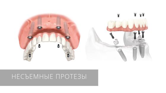 Несъемное протезирование зубов в стоматологической клинике «Даная»